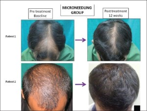 Microneedling and Minoxidil Hair Growth Before After.
