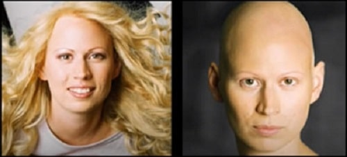 Alopecia Areata Hair Loss Photo