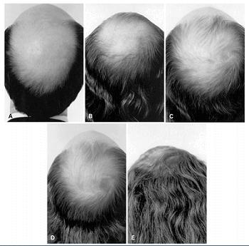 Estrogen Treatment Hair Growth