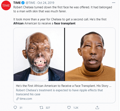 African Face Transplant