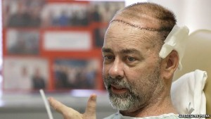 Scalp and Skull Transplant with Hair