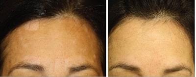 Tofacitinib Vitiligo Reversal