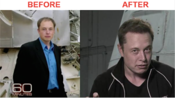 Elon Musk Hair Transplant Before and After