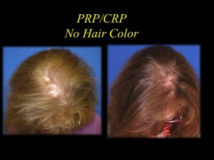 PRP Female Hair Regrowth