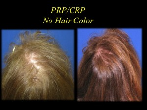 PRP Darker Hair in Female