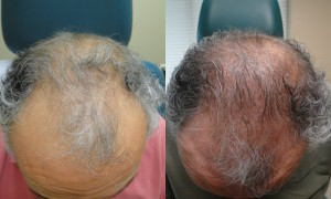 PRP Male Hair Darkening