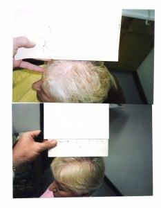 Platelet-Rich Plasma in Older Person