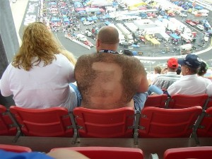 Bald Man with Hairy Back