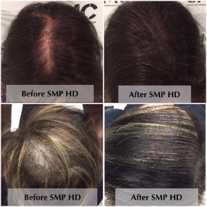 Scalp Micropigmentation in Women