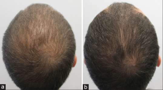 Mesotherapy and Dutasteride for Hair Loss
