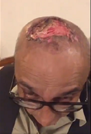 Hair Transplant Gone Wrong