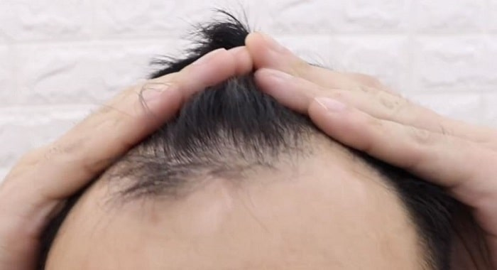 Receding Hairline Hair Loss