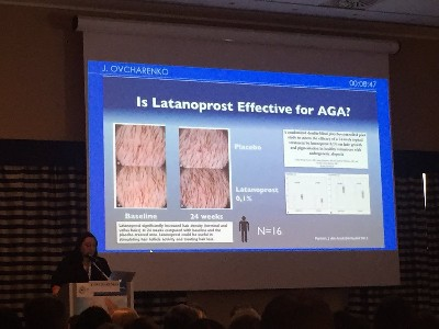 Latanoprost and hair loss