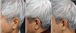 Hair Repigmentation