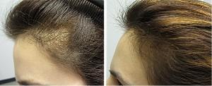 Histogen Hair Stimulating Complex HSC660