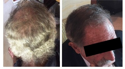 Did I Underestimate RiverTown Therapeutics? - Hair Loss Cure