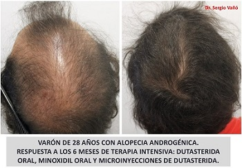 Dutasteride Injections to Scalp