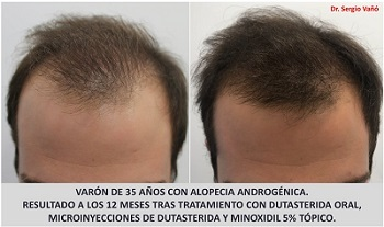 Dutasteride and Topical Minoxidil – 12 Month Hair Growth