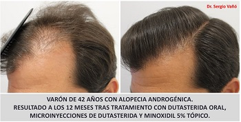 Dutasteride plus Topical Minoxidil Hair Growth at 12 Months
