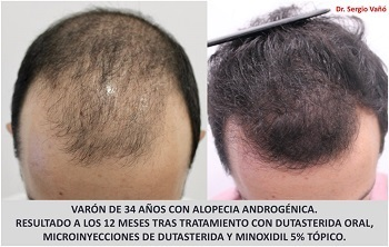 Dutasteride and Topical Minoxidil Hair Growth Before After