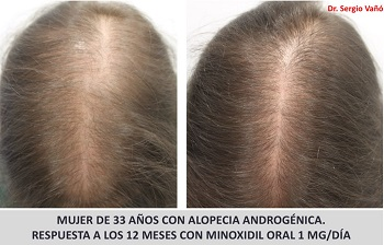 Oral Minoxidil Hair Growth in a Female: Before and After