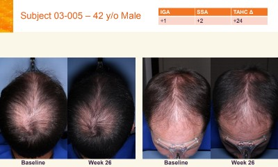 Topical JAK Inhibitor Hair Growth