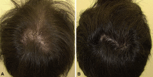 Oral Minoxidil Hair Growth