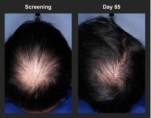 Follica Hair Growth Results
