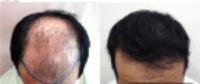 Stem Cell Hair Transplant