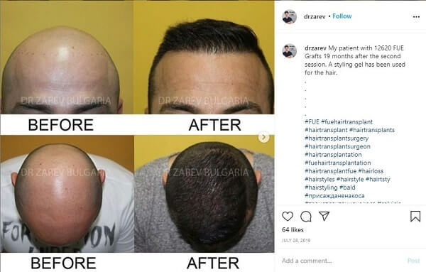 Dr. Tsvetalin Zarev FUE Gigasession Hair Transplant