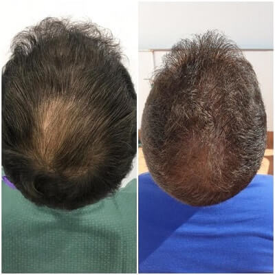 Dutasteride and Oral Minoxidil Before After