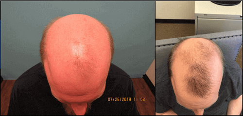 2cc Exosomes from Dr. Dan McGrath. Frontal Scalp Only. 3-Month Hair Growth.