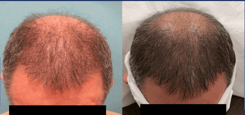 5cc Exosomes. Frontal Scalp. 3 Months.