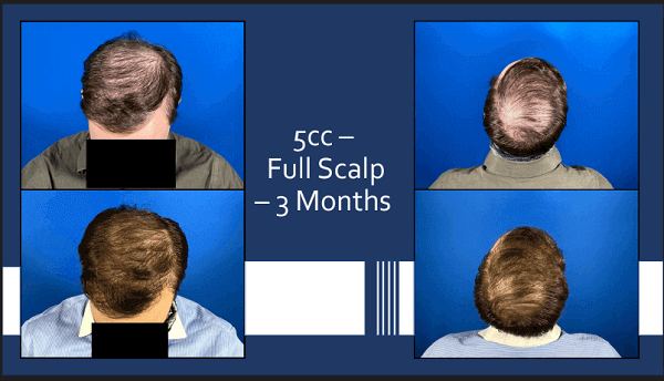5cc Exosomes for Hair Growth from McGrath Medical. Full Scalp. 3 Months.