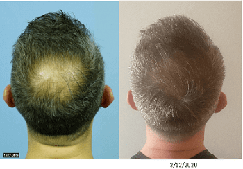 Exosomes, PRP and Wharton's Jelly Hair Loss Treatment