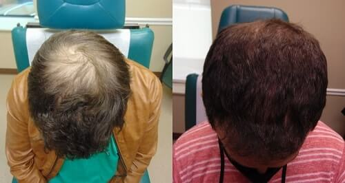 Exosomes Before and After Hair Growth