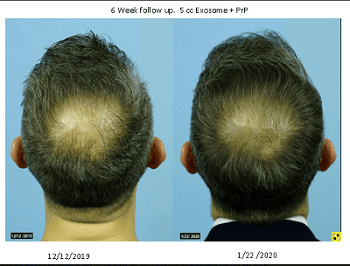 Exosomes PRP Before After Hair Growth