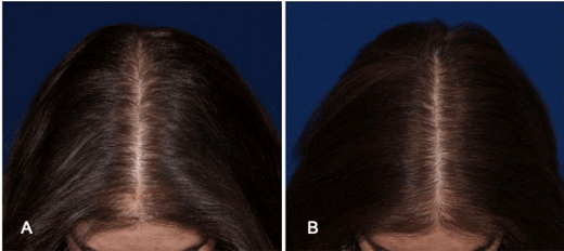 Wounding, Microneedling, Follica and Female Hair Growth
