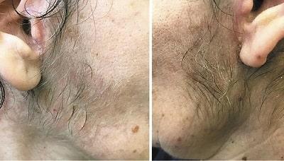 Fat Grafting Hair Growth