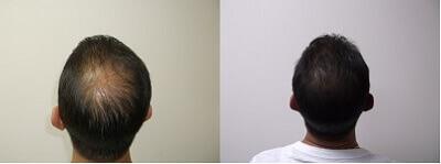 CBD Oil Hair Growth