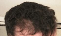 Before Amino Acid Hair